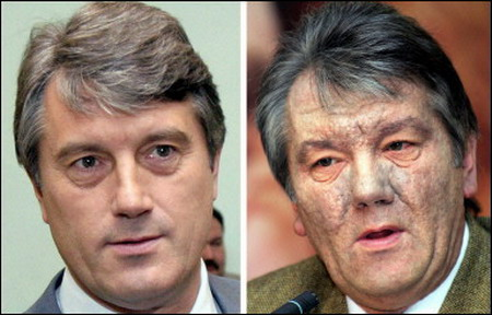 This is what happens to someone poisoned with Dioxin. President Viktor Yushchenko was one victim.  He became very ill but didn't die. Dioxin is not something you want to consume if you can possibly avoid it. http://news.kievukraine.info/2005/12/dioxin-in-yushchenkos-blood-samples.html